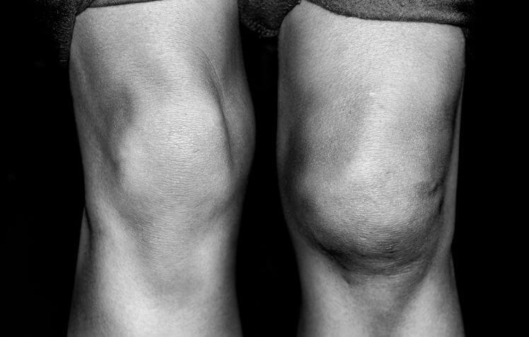 knee swollen